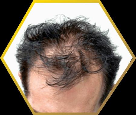 male pattern baldness- jonsson protein singapore