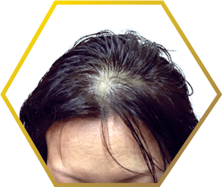 causes female hair loss after menopause | your cool haircut photo blog, Skeleton