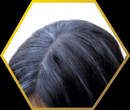 premature grey hair- jonsson protein singapore
