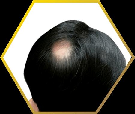 spot baldness- jonsson protein singapore