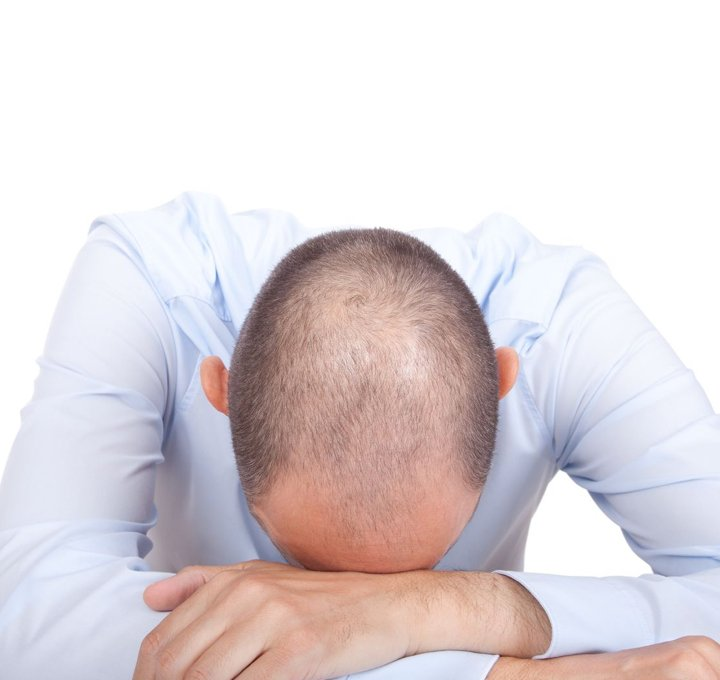 Jonsson Protein balding man and male hair loss