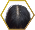 Jonsson Protein black hair with dandruff in women