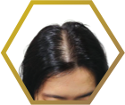 Jonsson Protein causes of female pattern baldness