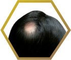 Jonsson Protein male baldness spot small size