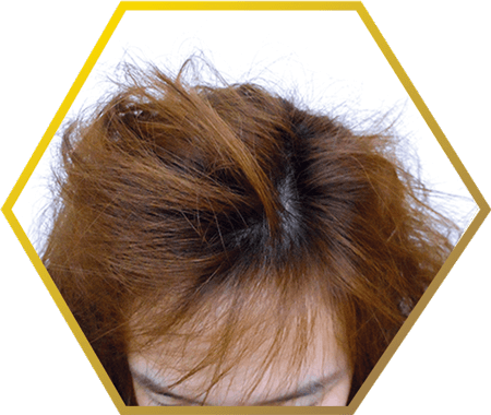 chemically damaged hair (chemical related hair loss)- jonsson protein singapore