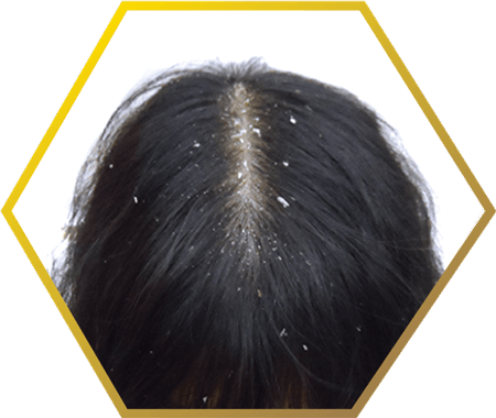 Jonsson Protein causes of dandruff related hair issues
