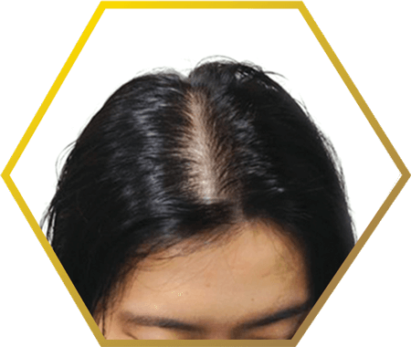 Jonsson Protein signs and patterns of female baldness