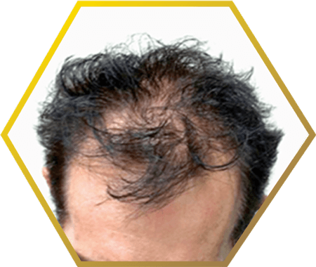 Male Pattern Baldness Hair Loss Causes Treatment Custom Male Pattern Baldness