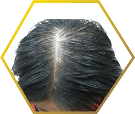 Jonsson Protein treatments and remedies for post natal hair loss