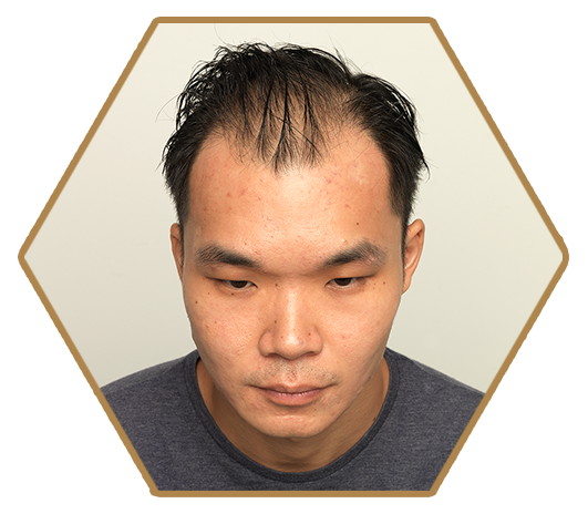 Jonsson Protein before treatment of male pattern baldness