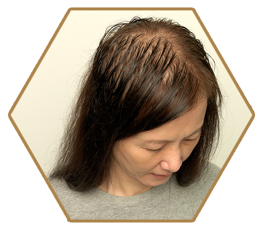 Jonsson Protein thinning and balding hair in women