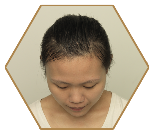 Jonsson Protein female before post natal hair loss issue