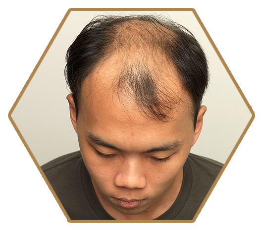 Jonsson Protein before treatment male genetic hairloss