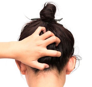 Scalp Problems: How to get rid of Dandruff