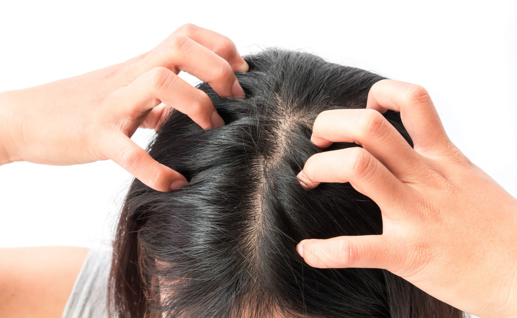 68533790 - closeup woman hand itchy scalp, hair care concept