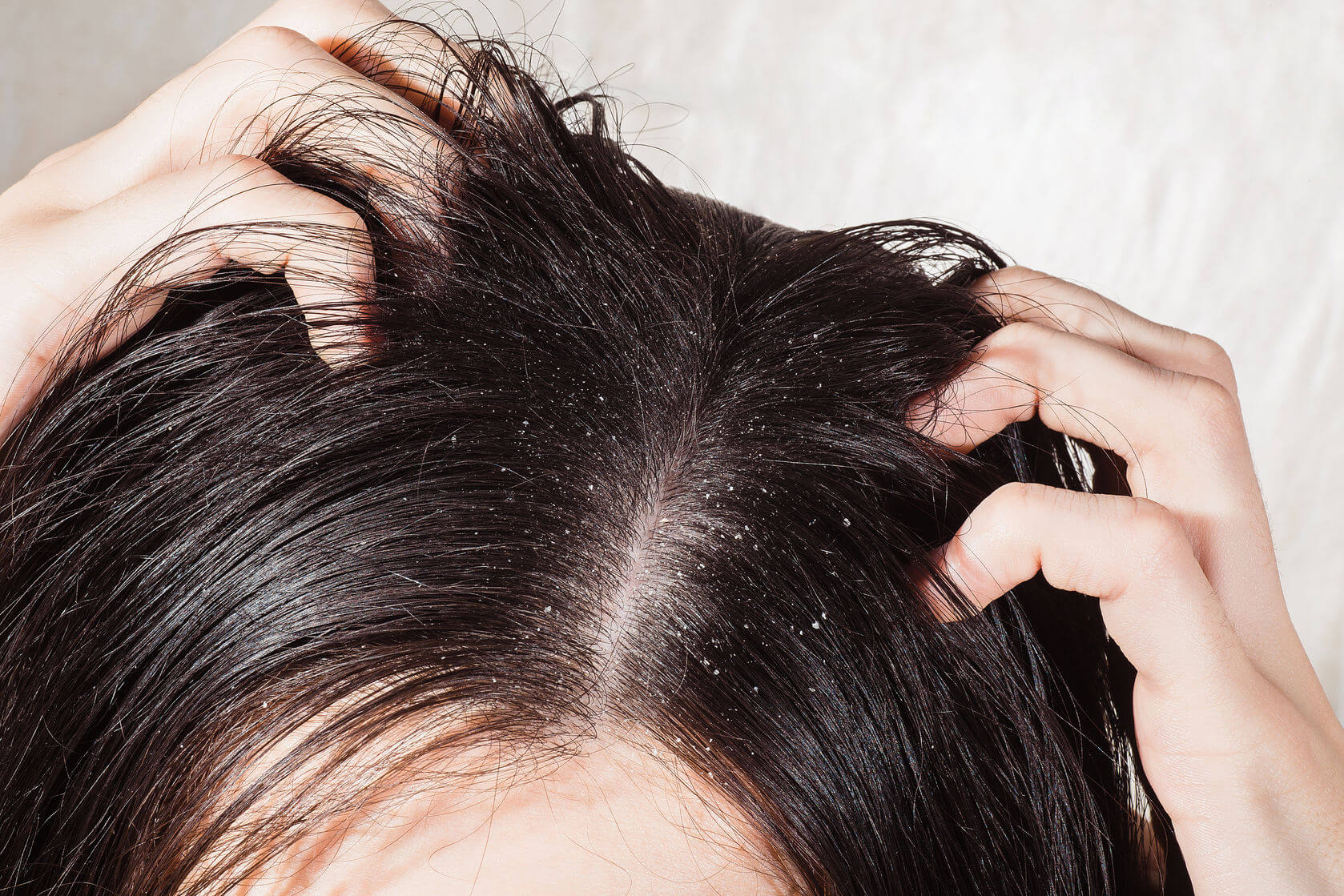 Dandruff Treatment – Say Goodbye To Dry Skin