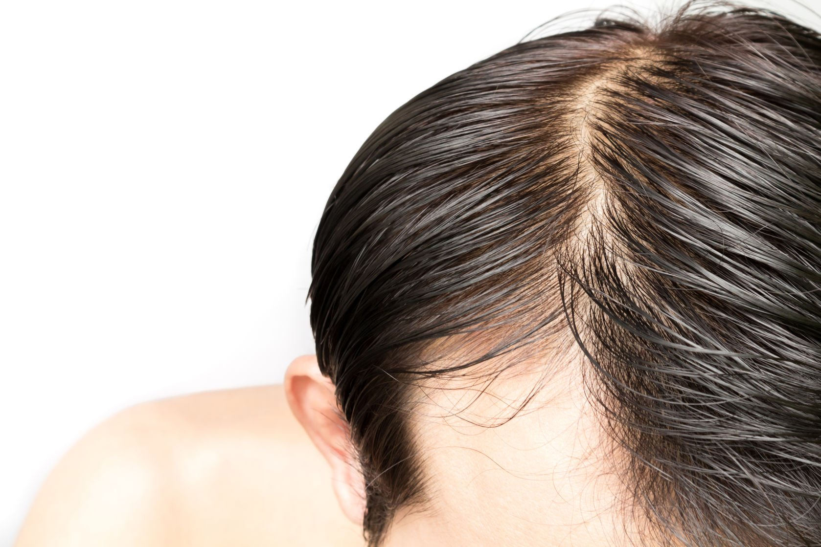 66314221 - closeup young man serious hair loss problem for hair loss concept